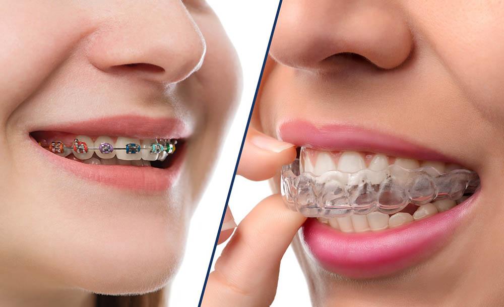 Идеально ровные зубы. Какие виды брекет-систем существуют